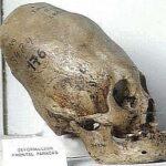 Μυστήριο με περίεργο κρανίο που βρέθηκε στην Ρωσία