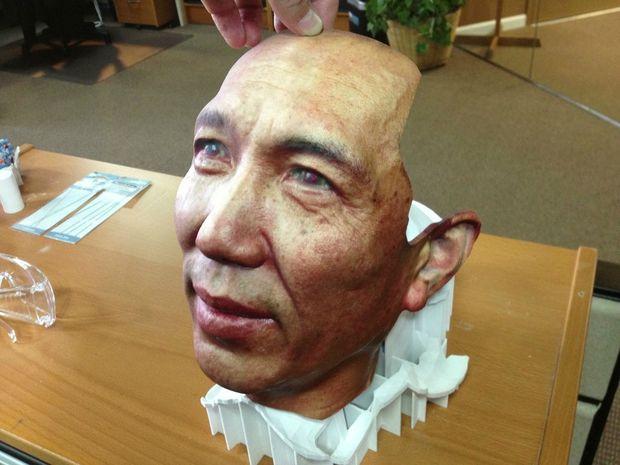 3D Printing, η τεχνολογία που σώζει ζωές